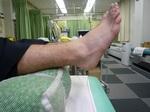 健側右足との比較.JPG