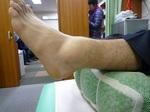 左足腫脹.JPG