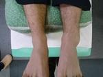 左足関節捻挫.JPG