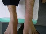 左足関節捻挫整復後.JPG