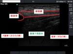 膝蓋骨下のエコー像.jpg