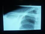 鎖骨骨折Ⅰ.JPG